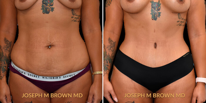 Tummy Tuck with Lipo Tampa - before and after picture patient 01 front view