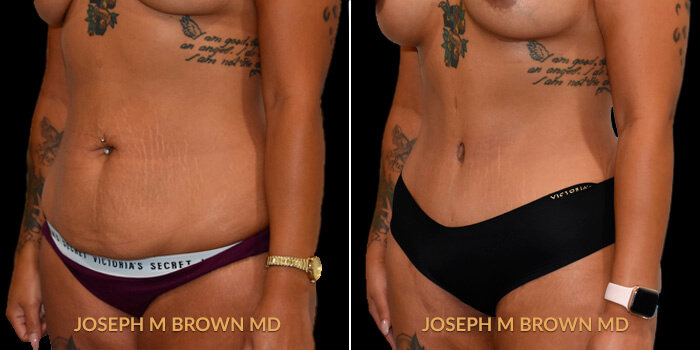 Patient 02 3/4th Left Side View Liposuction Tampa Aesthetic & Plastic Surgery