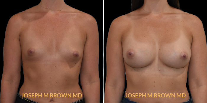 Patient 13 Front Side View Breast Augmentation Tampa Aesthetic & Plastic Surgery