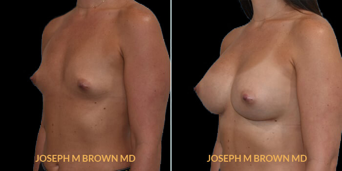 Patient 13 3/4th Left Side View Breast Augmentation Tampa Aesthetic & Plastic Surgery
