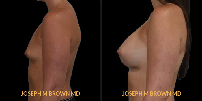 Patient 13 Left Side View Breast Augmentation Tampa Aesthetic & Plastic Surgery