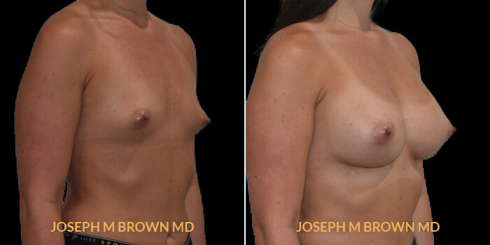Patient 13 3/4th Right Side View Breast Augmentation Tampa Aesthetic & Plastic Surgery