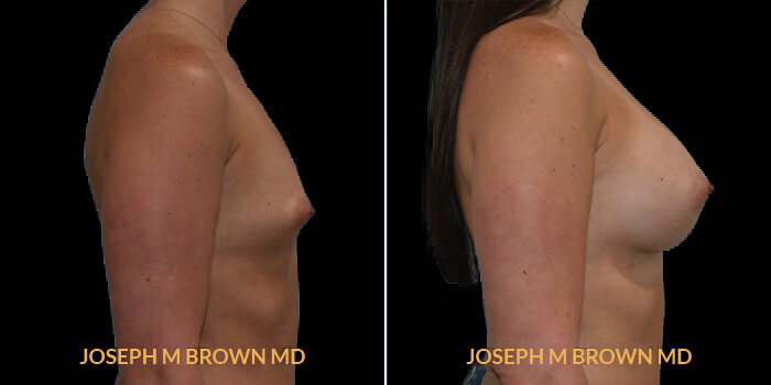 Patient 13 Right Side View Breast Augmentation Tampa Aesthetic & Plastic Surgery