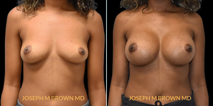 Patient 14 Front Side View Breast Augmentation Tampa Aesthetic & Plastic Surgery