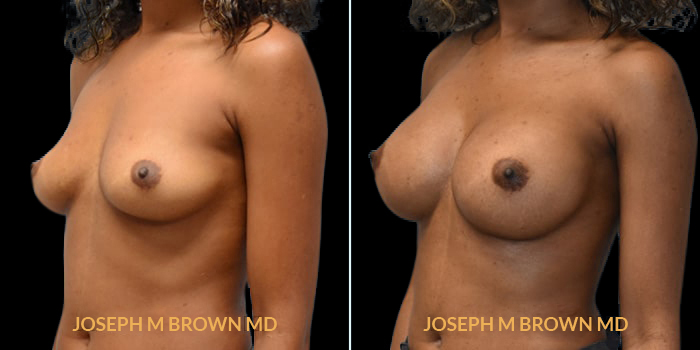 Patient 14 3/4th Left Side View Breast Augmentation Tampa Aesthetic & Plastic Surgery