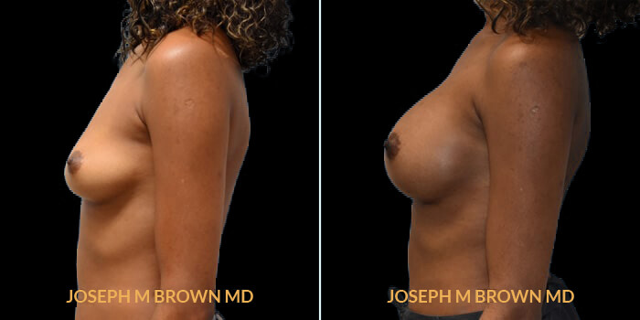 Patient 14 Left Side View Breast Augmentation Tampa Aesthetic & Plastic Surgery
