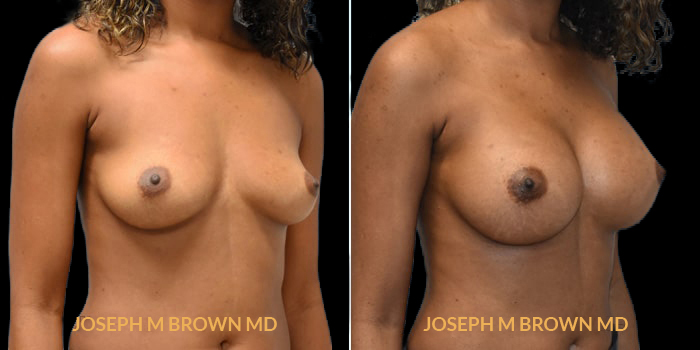 Patient 14 3/4th Right Side View Breast Augmentation Tampa Aesthetic & Plastic Surgery