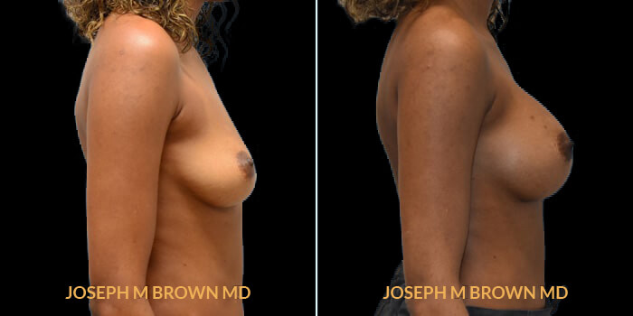 Patient 14 Right Side View Breast Augmentation Tampa Aesthetic & Plastic Surgery