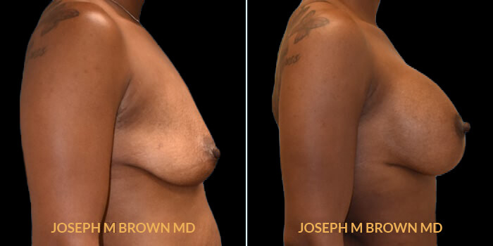 Breast Lift - before and after picture patient 01 right side view
