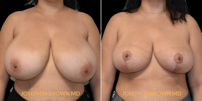 Breast Reduction - patient 01 before and after picture front view