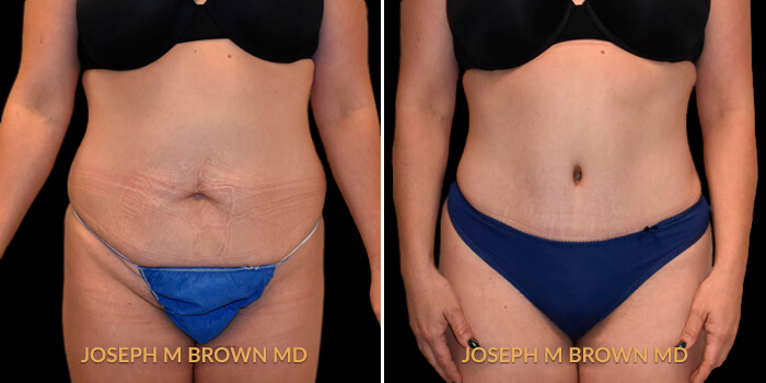 Liposuction Tampa Aesthetic & Plastic Surgery - Patient 04 before and after picture front view