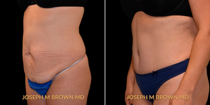 Tummy Tuck Lipoabdominoplasty Tampa - before and after picture patient 02 3/4th left side view