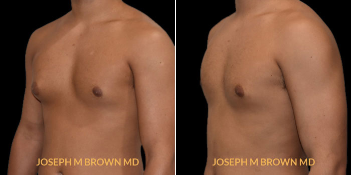 Patient 01 3/4th Left Side View Male Breast Reduction Tampa Aesthetic & Plastic Surgery
