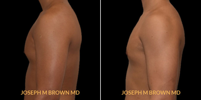 Patient 01 Left Side View Male Breast Reduction Tampa Aesthetic & Plastic Surgery