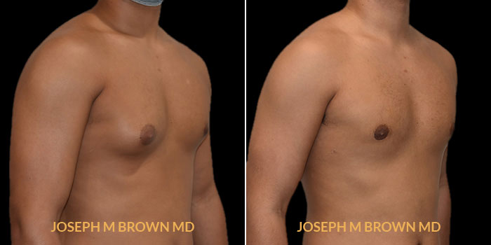 Patient 01 3/4th Right Side View Male Breast Reduction Tampa Aesthetic & Plastic Surgery