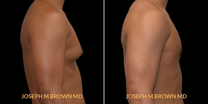 Patient 01 Right Side View Male Breast Reduction Tampa Aesthetic & Plastic Surgery