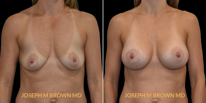 Patient 15 Front Side View Breast Augmentation Tampa Aesthetic & Plastic Surgery