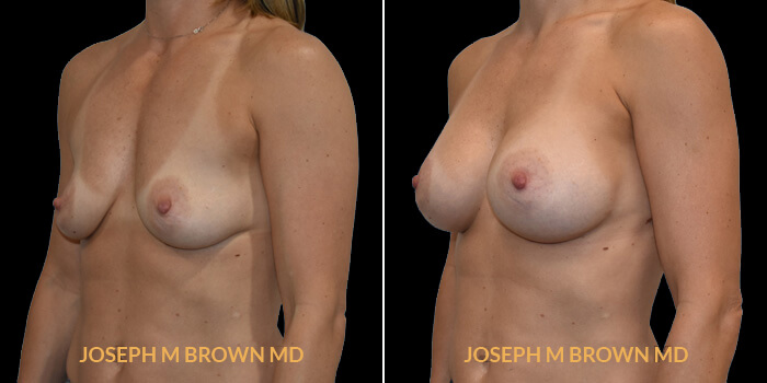 Patient 15 3/4th Left Side View Breast Augmentation Tampa Aesthetic & Plastic Surgery