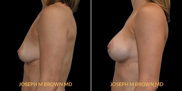 Patient 15 Left Side View Breast Augmentation Tampa Aesthetic & Plastic Surgery
