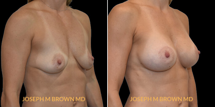 Patient 15 3/4th Right Side View Breast Augmentation Tampa Aesthetic & Plastic Surgery