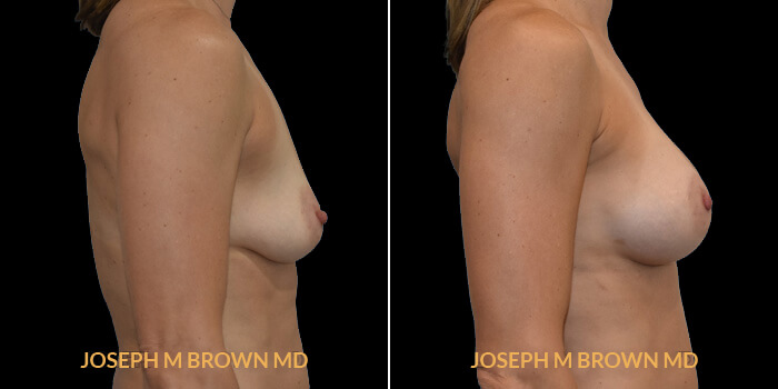 Patient 15 Right Side View Breast Augmentation Tampa Aesthetic & Plastic Surgery