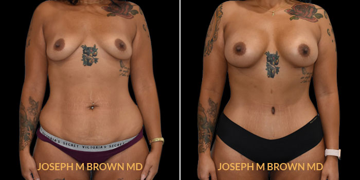 Patient 04 Front Side View Mommy Makeover Tampa Aesthetic & Plastic Surgery