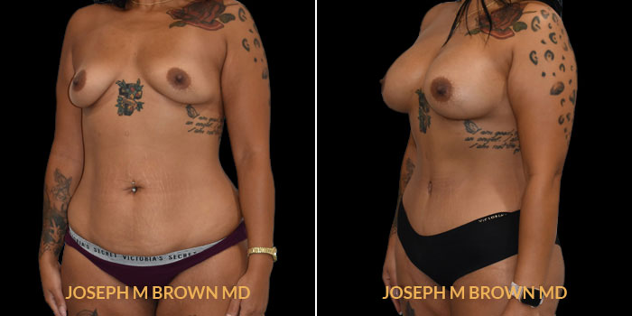 Patient 04 3/4th Left Side View Mommy Makeover Tampa Aesthetic & Plastic Surgery