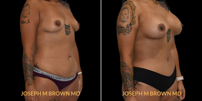 Patient 04 3/4th Right Side View Mommy Makeover Tampa Aesthetic & Plastic Surgery