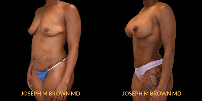 Patient 03 3/4th Left Side View Mommy Makeover Tampa Aesthetic & Plastic Surgery