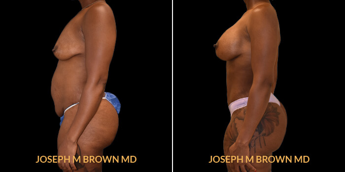 Liposuction Tampa Aesthetic & Plastic Surgery - Patient 05 before and after picture left view