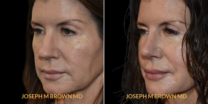 Rhinoplasty 3/4th left side view before and after Tampa Aesthetic & Plastic Surgery