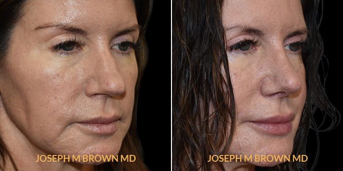 Rhinoplasty 3/4th right side view before and after Tampa Aesthetic & Plastic Surgery