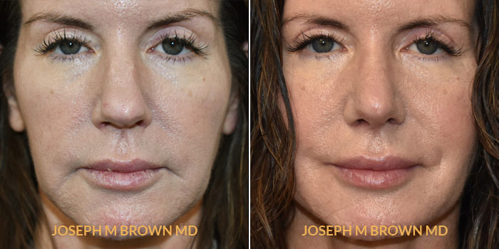 Rhinoplasty front view before and after Tampa Aesthetic & Plastic Surgery