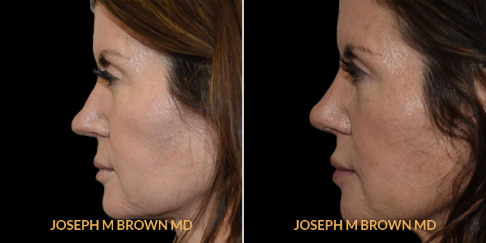 Rhinoplasty left side view before and after Tampa Aesthetic & Plastic Surgery
