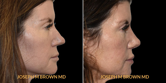 Rhinoplasty right side view before and after Tampa Aesthetic & Plastic Surgery