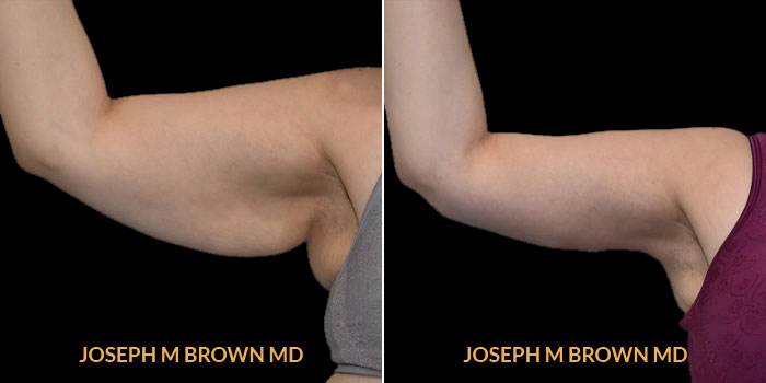 Patient 01 Right Side View Brachioplasty Tampa Aesthetic & Plastic Surgery
